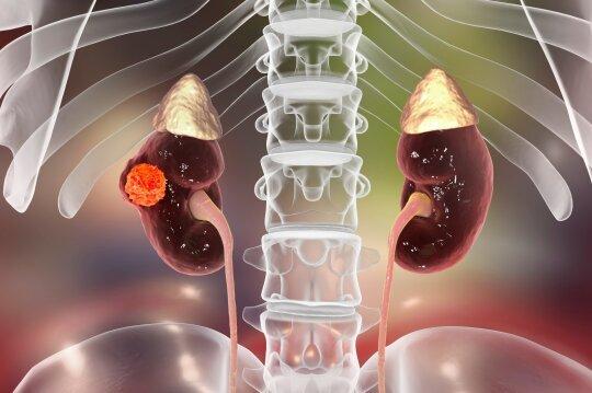 Inkstų vėžys