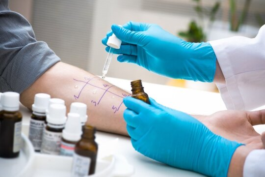 Tyrimas alergijai nustatyti