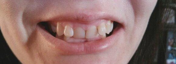 """Konkursas """"Mano šypsena"""": finalistės jau pradėjo šypsenos tobulinimo procedūras už beveik 20 tūkst. Lt"""