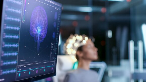 Neurotechnologijos