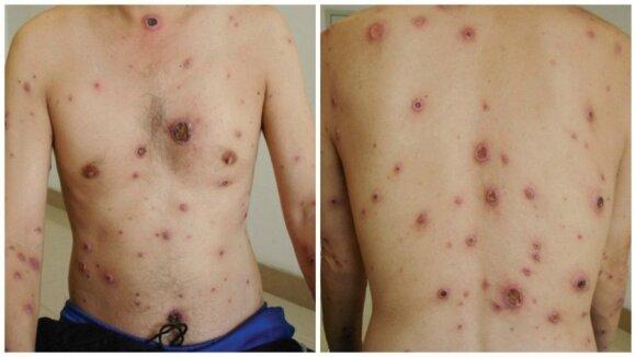 Nemanykite, kad venerinės ligos toli nuo jūsų: skaudžias ir negrįžtamas komplikacijas infekcija kuria tyliai