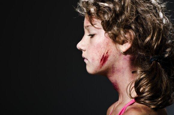 Dramų šeimose grimasos: prestižiniame sostinės rajone praskeltos galvos, kraujas ir be galo išsigandęs aštuonmetis