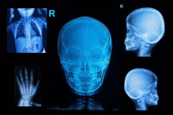 Mirtį sėjusios grožio procedūros: plaukus šalino rentgenu, gerdavo arseną ir piliules su kirmėlių kiaušinėliais