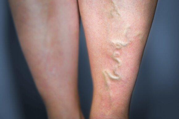 Negydote venų varikozės – galite rizikuoti net ir gyvybe: gydytojas išvardino pirmuosius simptomus