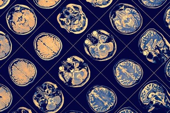 Neuropsichologė: kas labiausiai kenkia smegenims ir kokiais mitais neverta tikėti