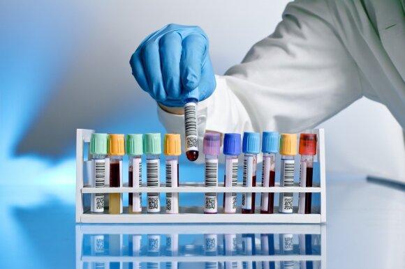 Kaip perskaityti bendrą kraujo tyrimą: pasakė, kokių rodiklių pakitimai rodo galimą ligą
