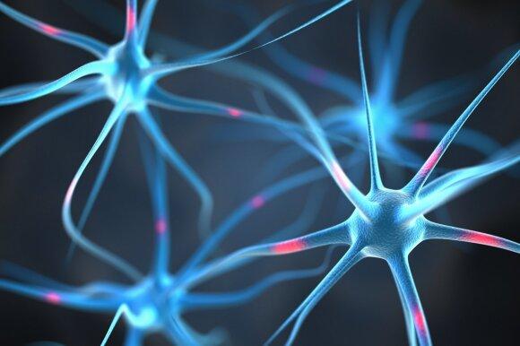 Profesorius papasakojo, kodėl smegenys ima vis mažiau atlikti savo darbą: pateikia 6 žingsnius, kaip to išvengti