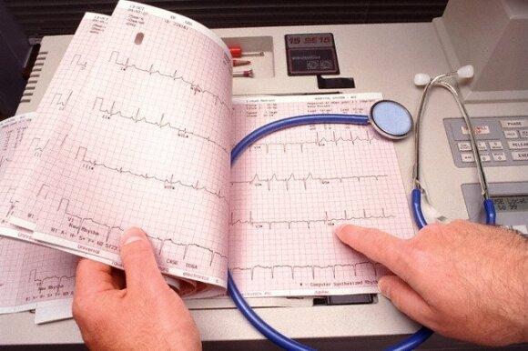 Kardiologas pataria: ką turime žinoti apie savo pulsą – pasitikrinti paprasta ir patiems