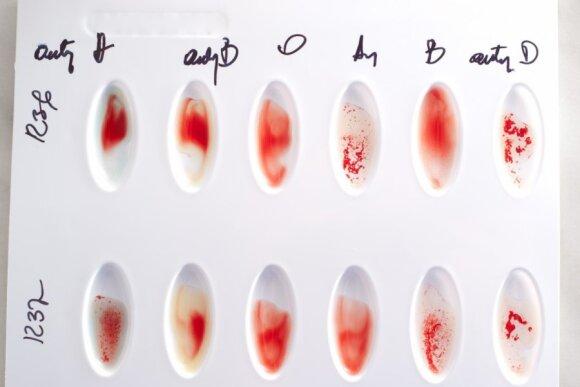 Kraujo grupės nustatymas