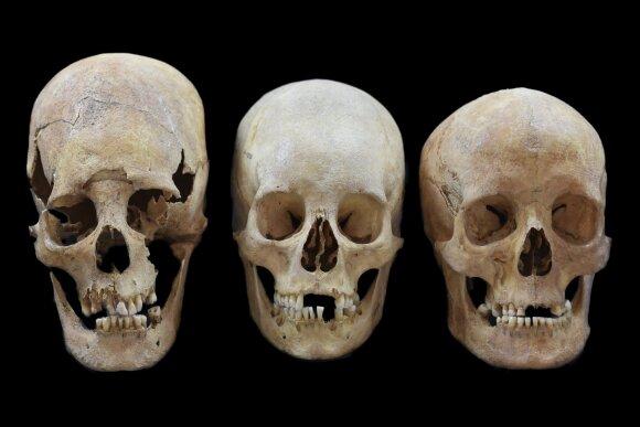 Deformuotos kaukolės
