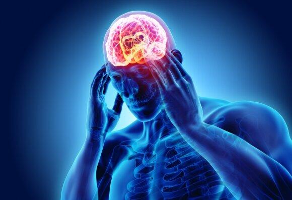 Smegenų liga