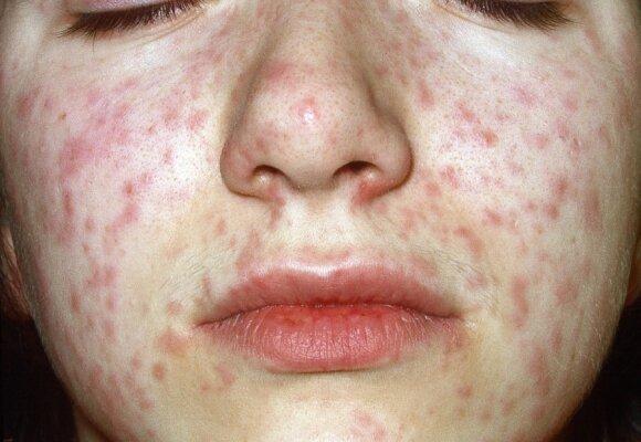 4 dažniausios ligos, kai išberia kūną: kaip atpažinti ir gydyti