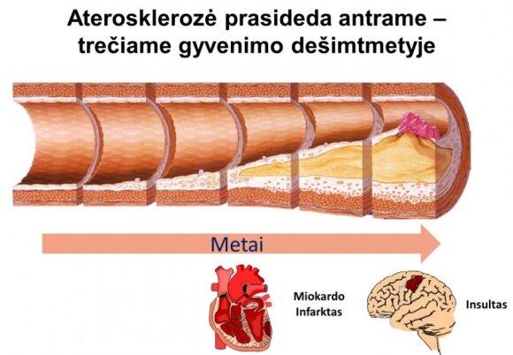 Medikai skelbia apie kraujo rodiklį, kuris bet kuriam iš mūsų gresia staigia mirtimi