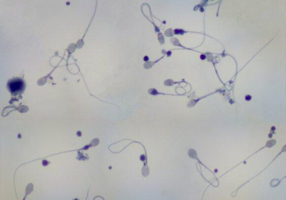 Spermatozoidai