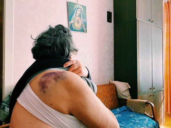 Пенсионерка Ванда рассказала историю побега из больницы: они преследовали меня и не хотели выпускать