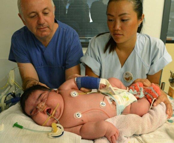 Kaip gimsta milžinai: sunkiausi 2013 - ųjų metų naujagimiai