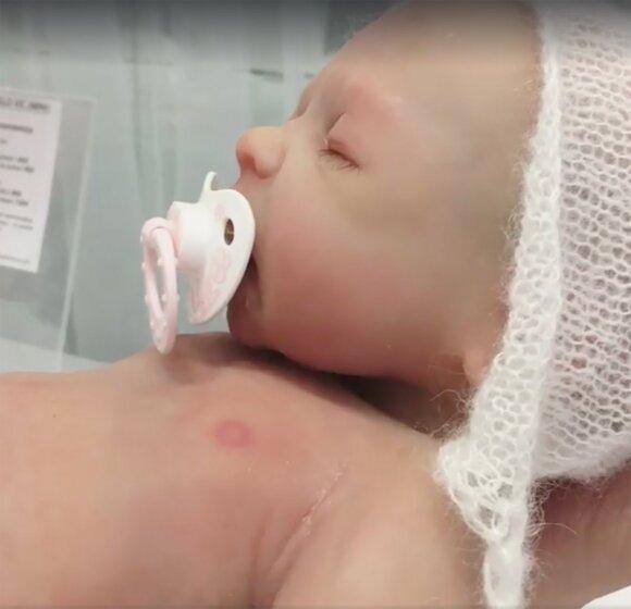 Įsižiūrėkite į šį kūdikį – ar pastebite kažką neįprasto?