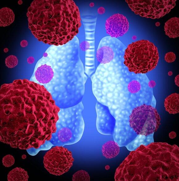 Plaučių vėžys