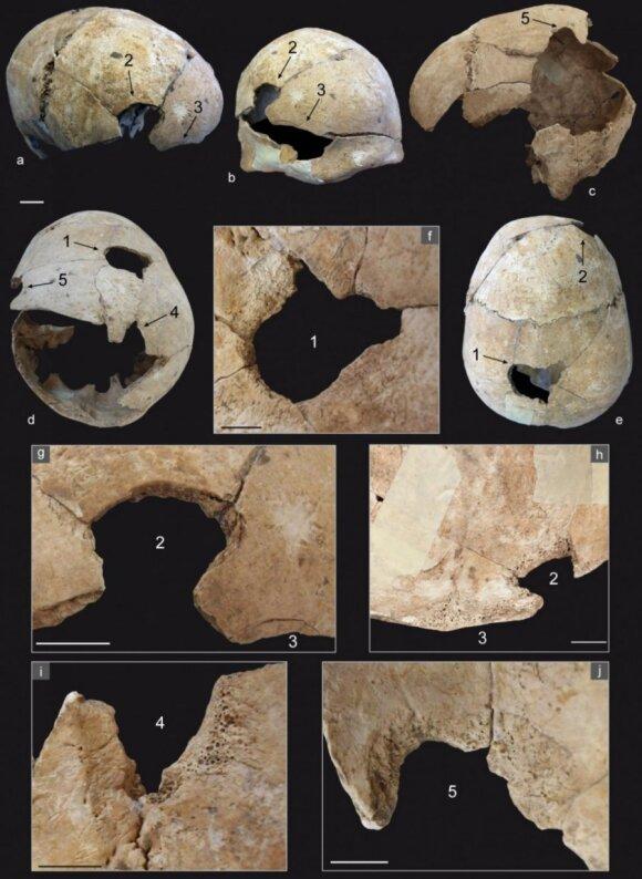 Stulbinantys neolito radiniai/Antiquity nuotr.