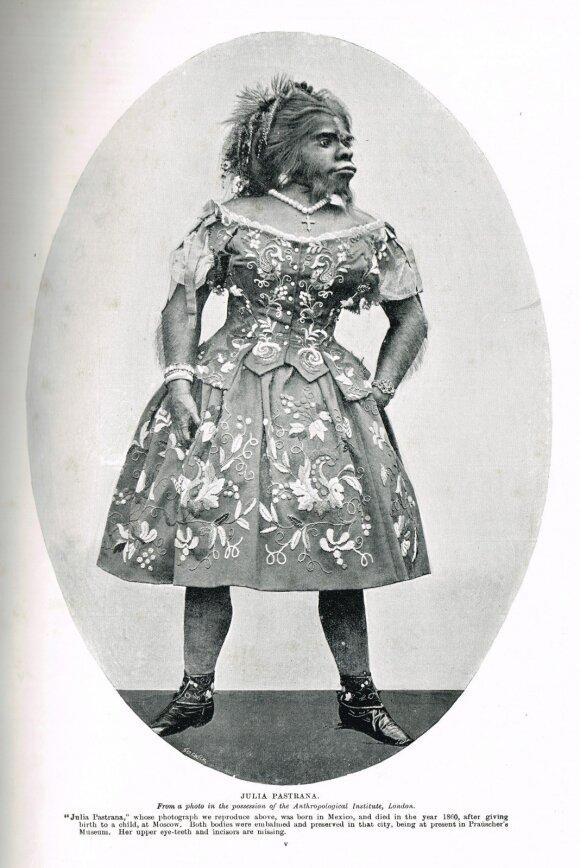 Beždžione vadintą moterį išnaudojo visą gyvenimą ir net po mirties 153 metus demonstravo jos kūną
