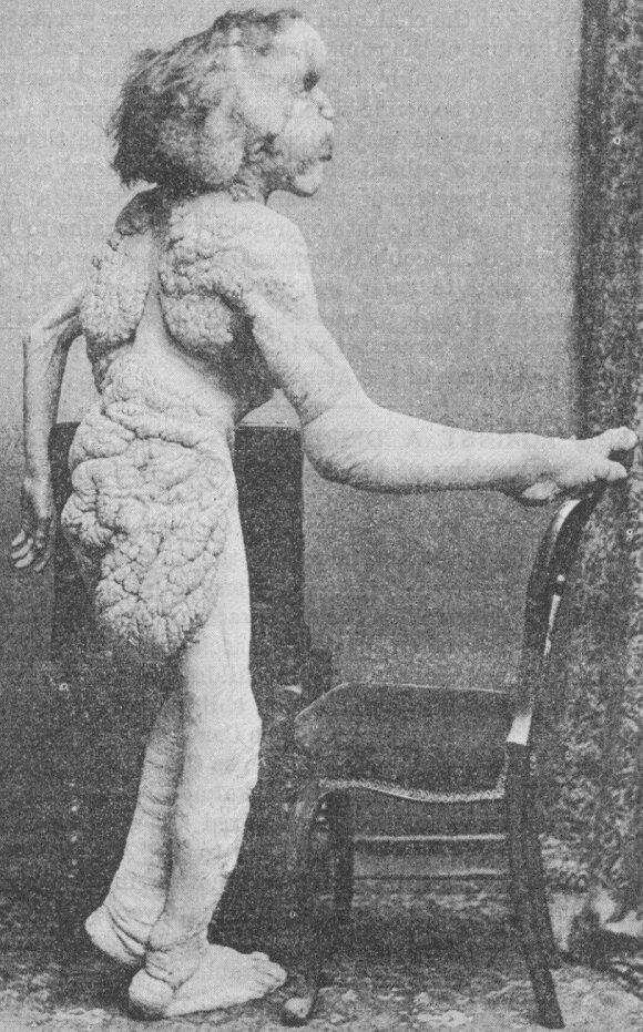 Joseph Merrick 1888