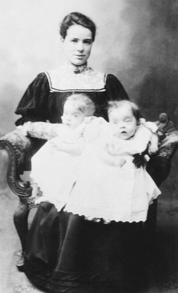 Violet ir Daisy Hilton