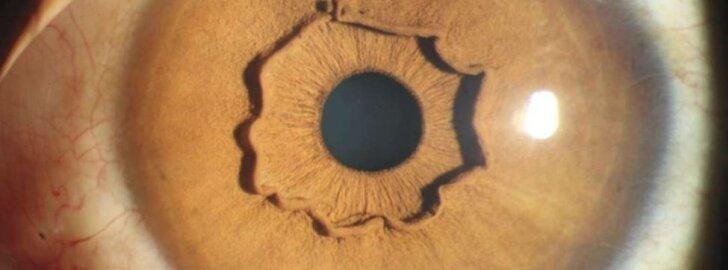 Akies garbanų vainikas