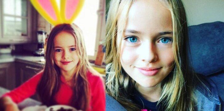 """Gražiausia pasaulyje mergaitė sulaukė kaltinimų: ar jie pelnyti? <sup style=""""color: #ff0000;"""">APKLAUSA</sup>"""