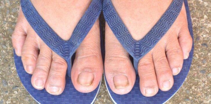 """<span style=""""color: #ff0000;"""">Pėdų grybelis</span>: gydymas ir prevencija"""