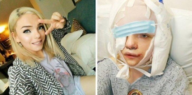 Lytį pakeitusi mergina paviešino nuotraukas ir video po plastinės operacijos
