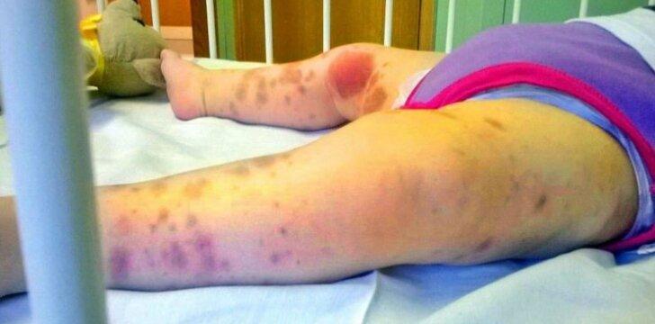 """Reta liga susirgusi mergaitė atrodė taip, tarsi būtų smarkiai sumušta <sup style=""""color: #ff0000;"""">FOTO</sup>"""