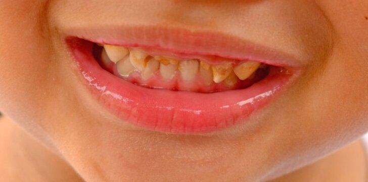 Vaikų dantų priežiūrą vis dar gaubia mitai