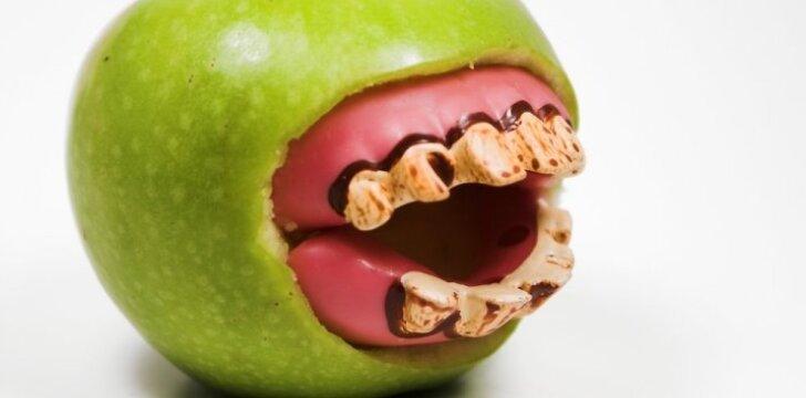"""Veiksmingiausias būdas, kaip nuo dantų pašalinti <span style=""""color: #ff0000;"""">apnašas ir akmenis</span>"""