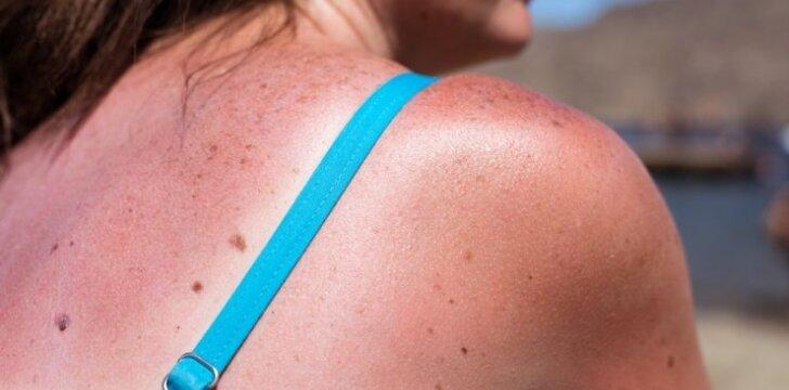 Kosmetologė pasakė, ką mano apie saulėje nudegusios odos gydymą kefyru