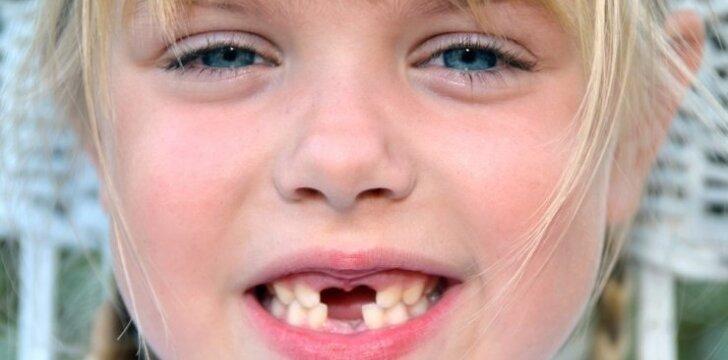 """Linksmas būdas ištraukti klibantį dantuką <sup style=""""color: #ff0000;"""">video</sup>"""