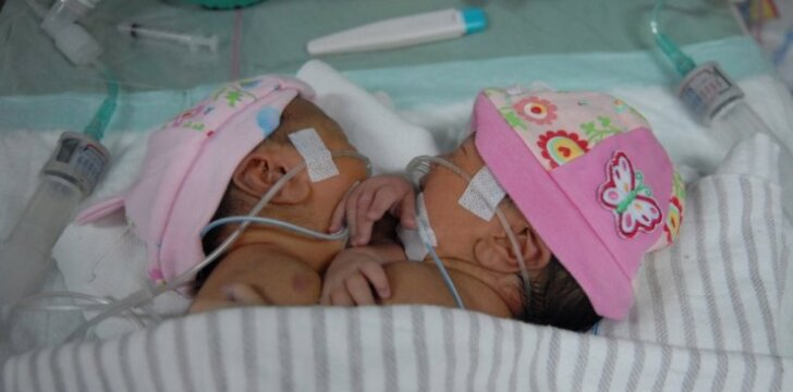 Gimė Siamo dvynės, kurios turi vieną širdį