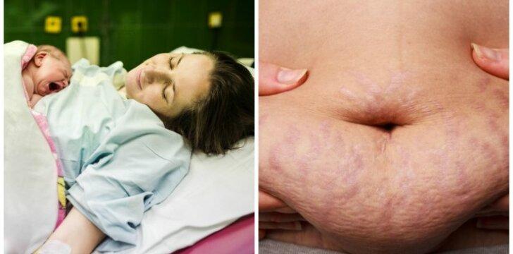 Parodė, kaip iš tiesų atrodo ką tik pagimdžiusios moters kūnas