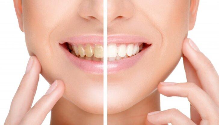 Dantų balinimas namuose: veiksmingiausi būdai ir kenksmingiausias maistas