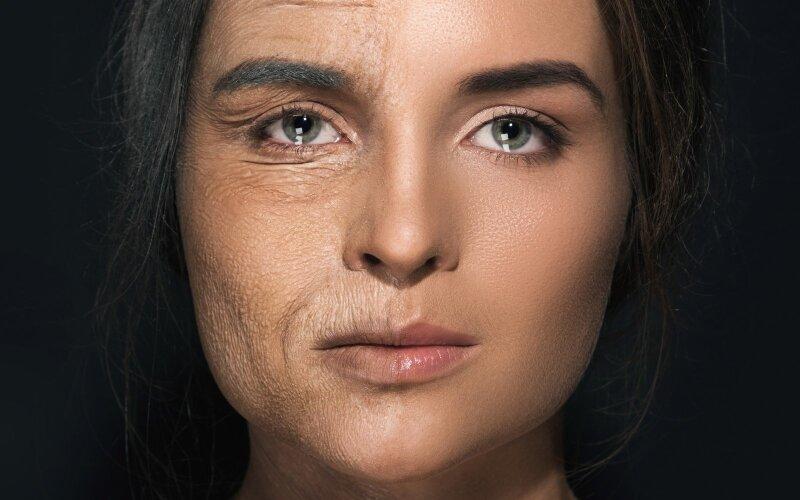 senėjimas