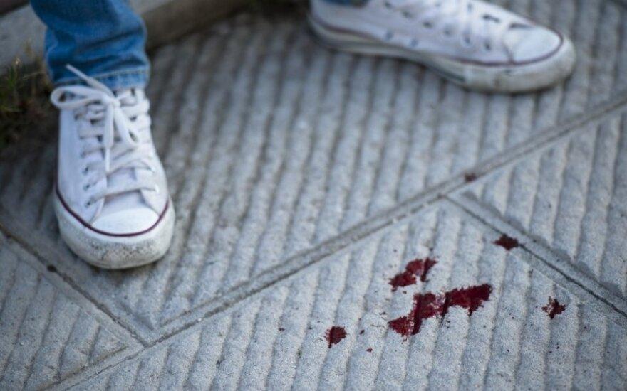 Žiaurumas Naujojoje Akmenėje: trys jaunuoliai daužė nepilnametę dėl telefono numerio