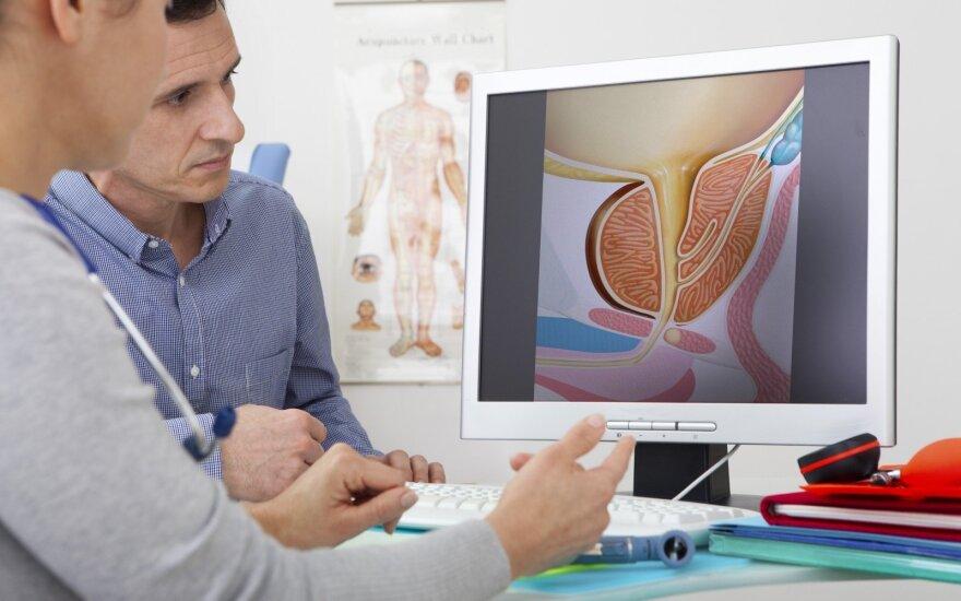 Vyras pas urologą