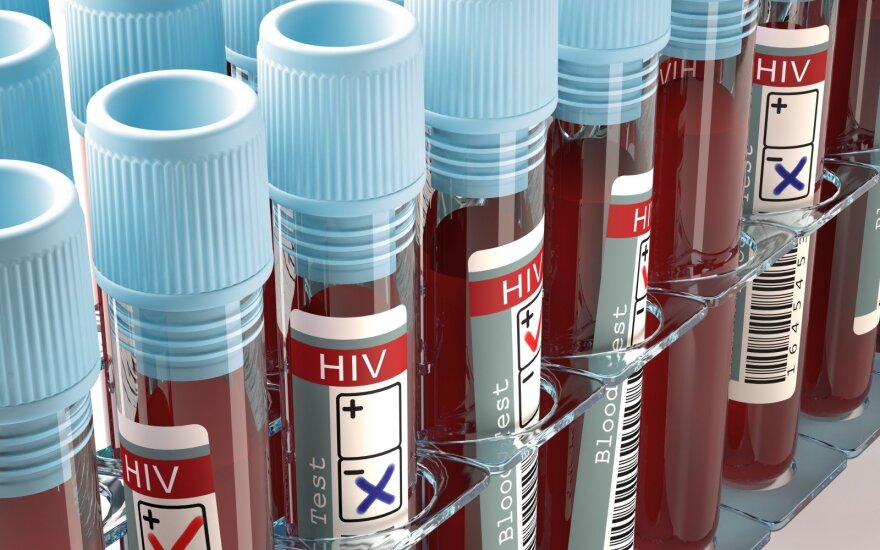 ŽIV testas