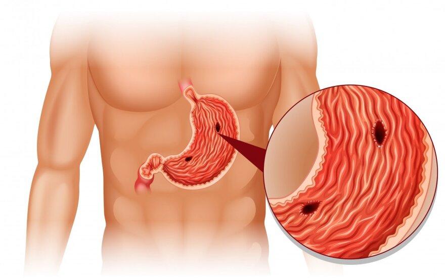 Ženklai, jog patys to nežinodami galite sirgti skrandžio opalige