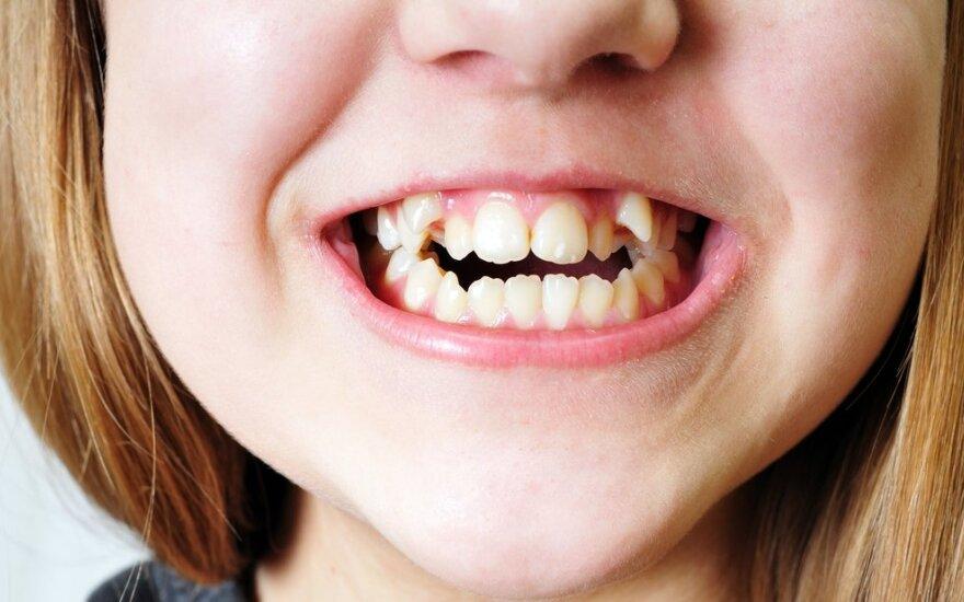 vaikas, mergaitė, dantys, kreivi, sąkandis, ortodontas, breketai
