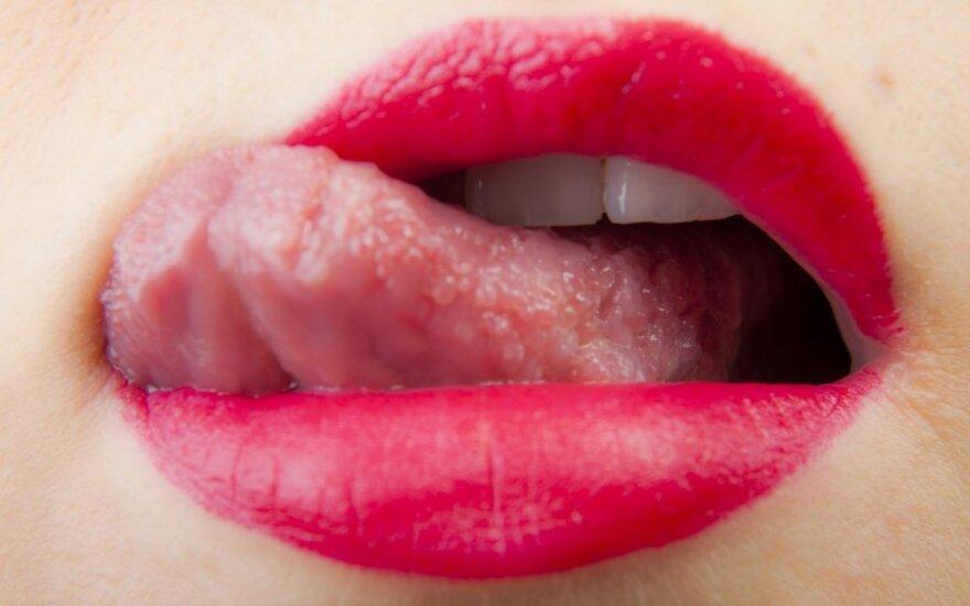 Burnos ligos: ką reiškia žaizdelės ir kada verta sunerimti?