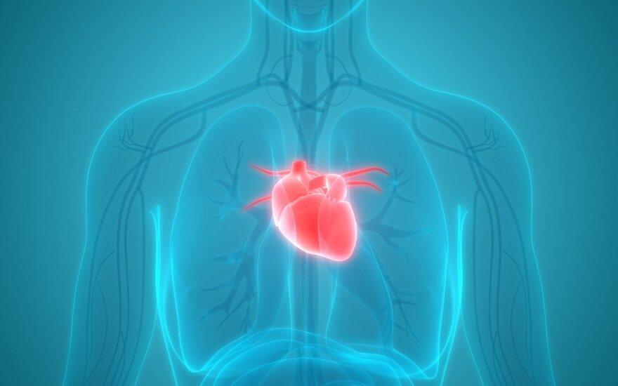 Širdies ir kraujagyslių ligos kerta negailestingai: kaip išvengti staigios mirties