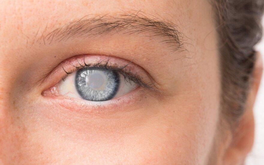 Profesorė: ši liga – pagrindinė aklumo priežastis