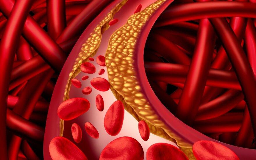 Kaip be vaistų sumažinti blogojo cholesterolio lygį