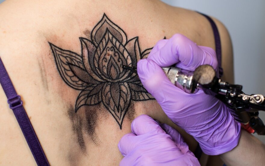 Tatuiruotė – jaunystės klaida, kurią įmanoma ištaisyti?