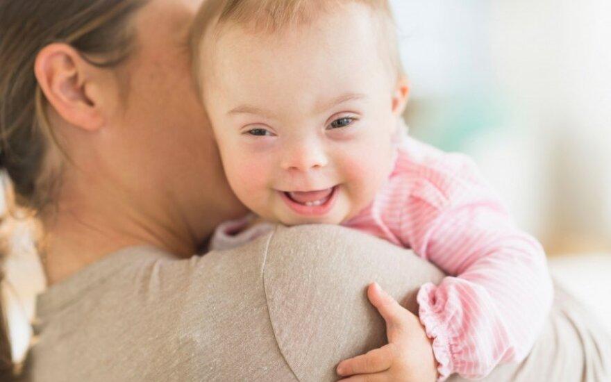 8-metę nuo kitų vaikų skiria tik viena chromosoma: gydytoja ragino mergaitės atsisakyti